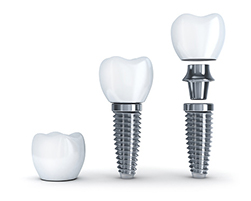 Dental Implants - Dublin, OH